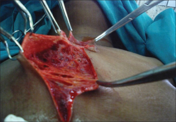 Figure 3: Extensive sponge-like subcutaneous tissues containing serous fluid and lying between the skin and the muscle layer