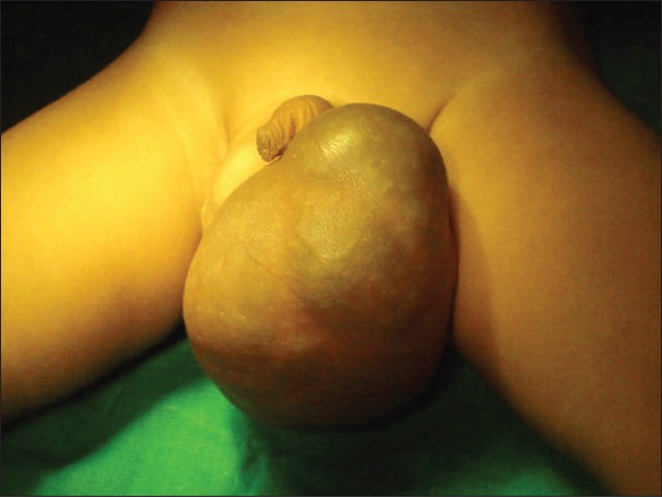 Figure 1: Clinical photograph showing left lobulated scrotal swelling with bluish discoloration of overlying skin