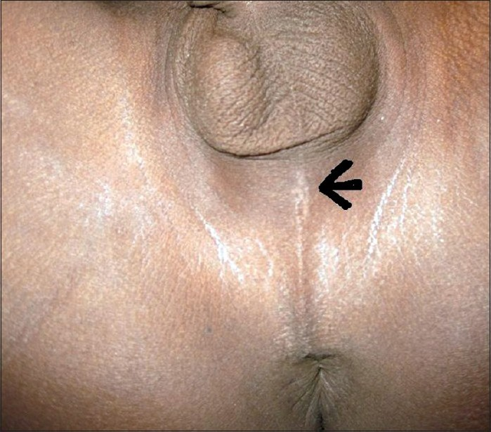 Figure 1: The perineum of the patient on presentation. The arrow points to the healed entry point of the perineal wound.
