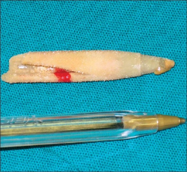Figure 3: The encrusted fragment of a writing pen extracted from the bladder compared with another writing pen.