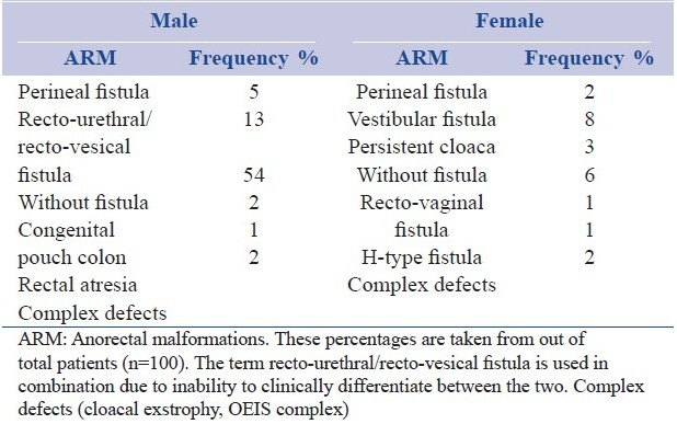 Rare Congenital imperforate anus and recto-vaginal fistula share