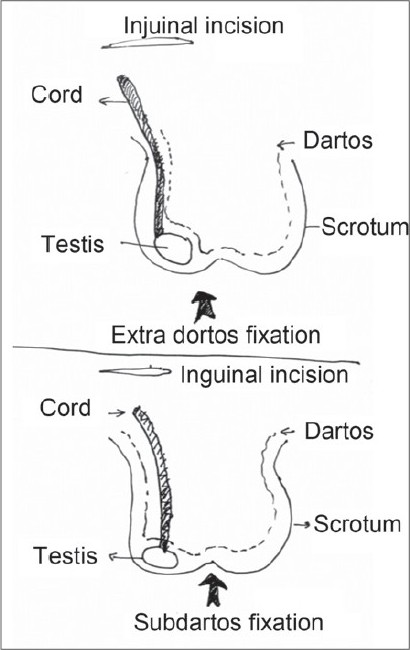 a modified technique for scrotal fixation during