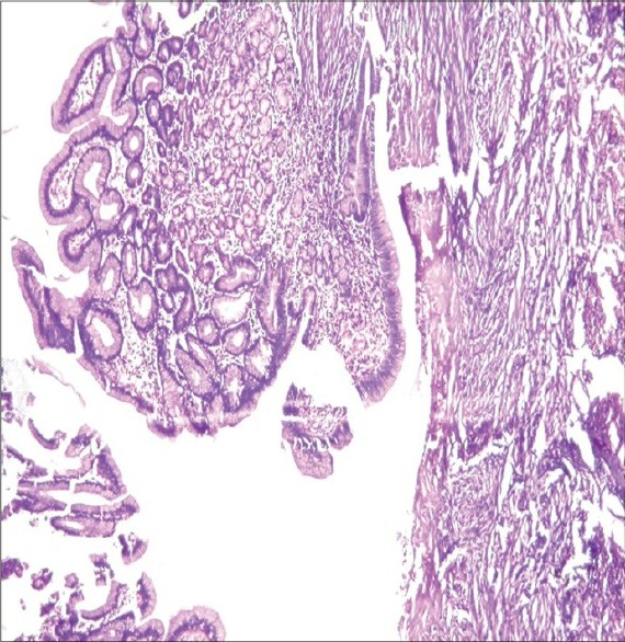 Figure 2: High magnification view showed ulcerated gastric mucosa (H and E, ×400)