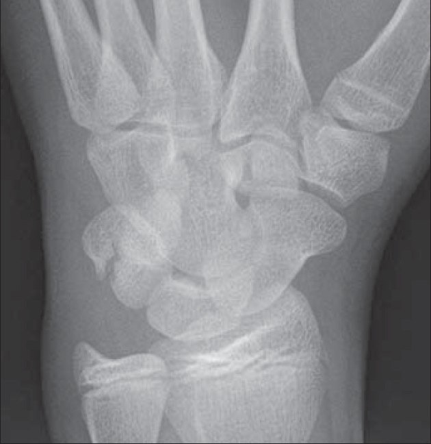 A Rare Case Of An Isolated Triquetrum Body Fracture In A 14 Year Old