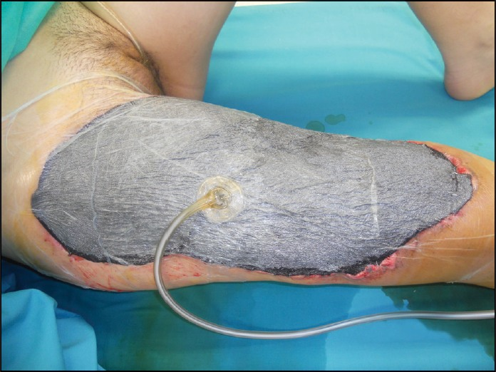 massive de gloving thigh injury treated by vacuum therapy dermal