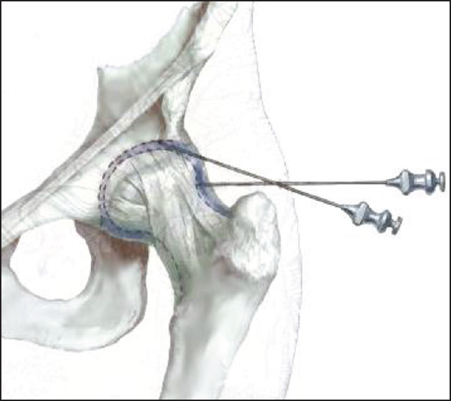 Surgical Treatment Options For Septic Arthritis Of The Hip In