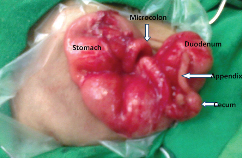 Figure 2: Intraoperative photograph showing dilated stomach and duodenum, a peanut-sized cecum followed by microcolon