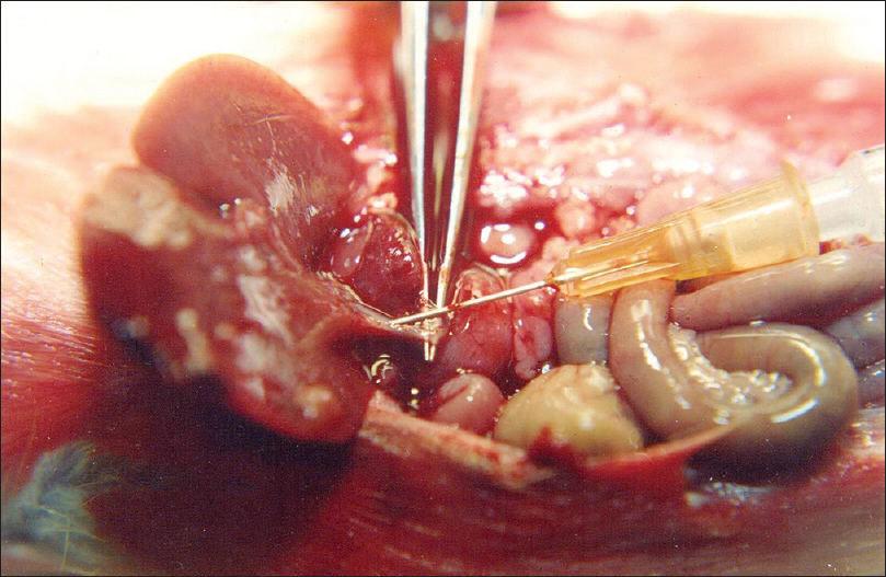 Figure 2: OK-432 being injected into the common bile duct